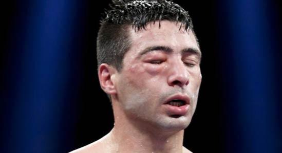 Mattysse perdió la visión en su ojo derecho