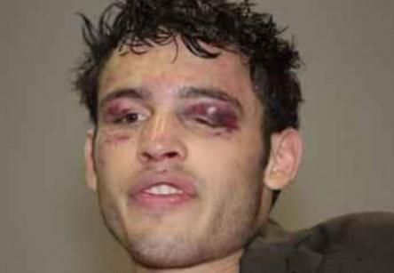 Chávez Jr. tras una pelea