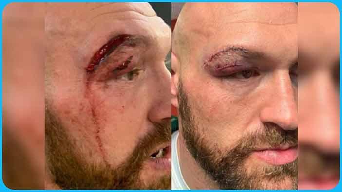 Tyson Fury cortado